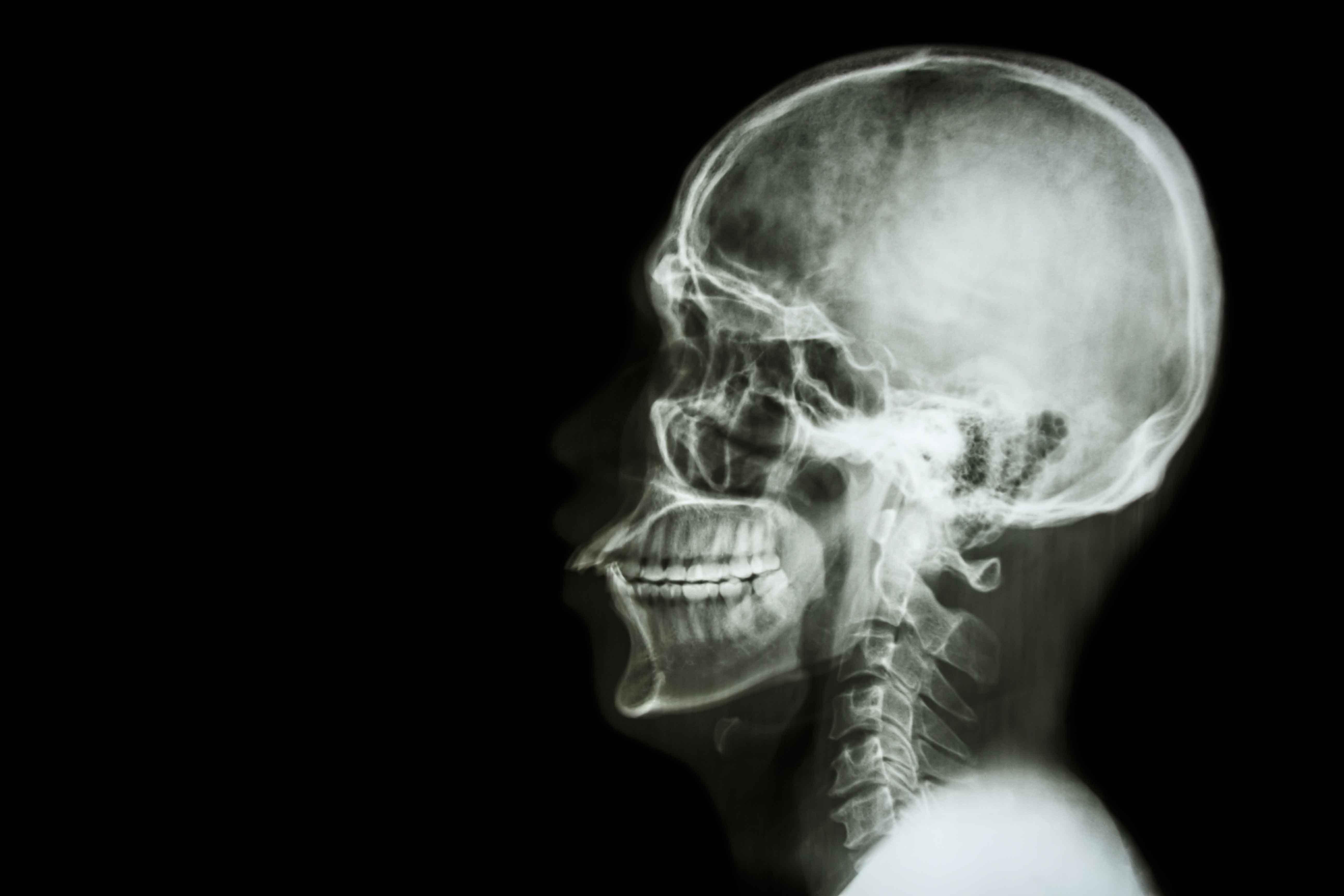 Técnico Profesional en Radiología Dental (90 horas) - NormaBasica